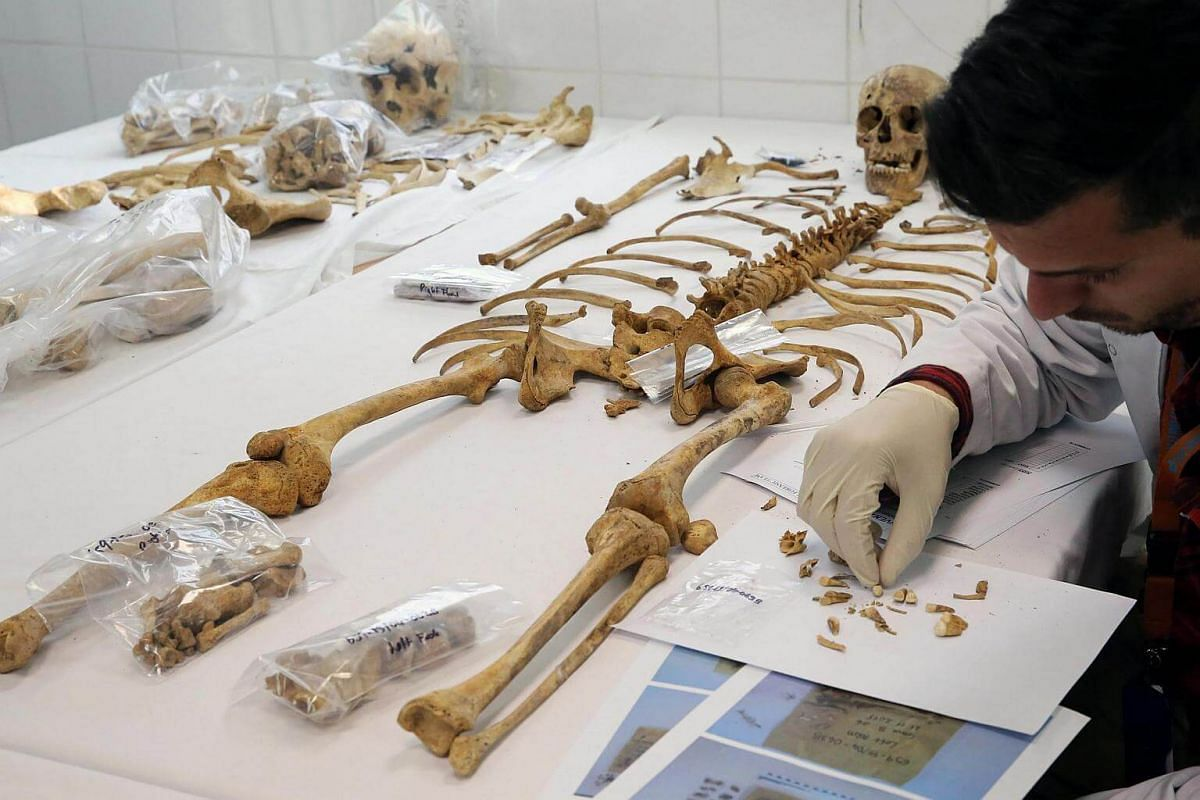 A forensic scientist examining human remains in a forensics laboratory run by the Committee of Missing Persons at the buffer zone in Nicosia, Cyprus, on Feb 18, 2017.