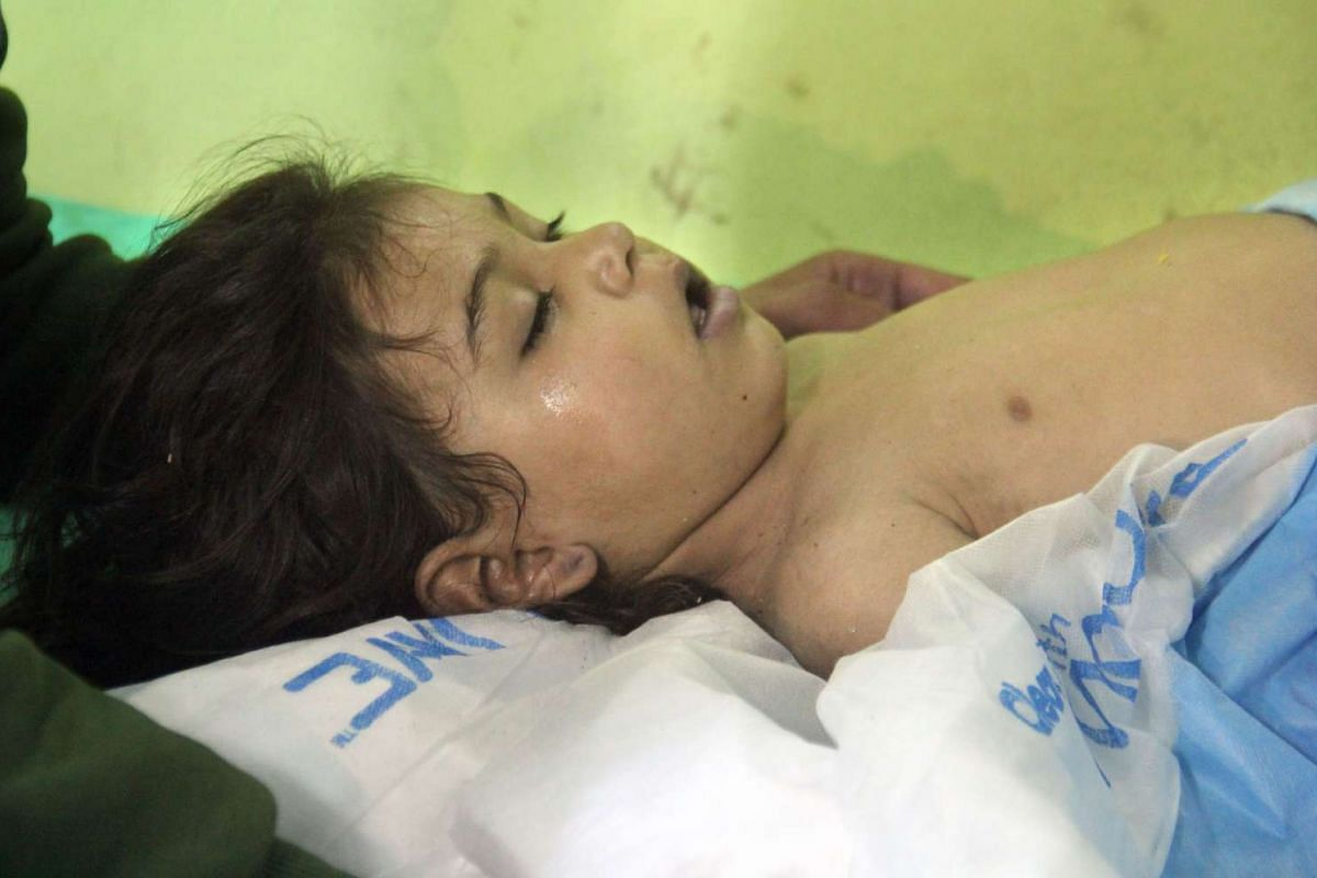 An unconscious Syrian child receives treatment at a hospital in Khan Sheikhun.