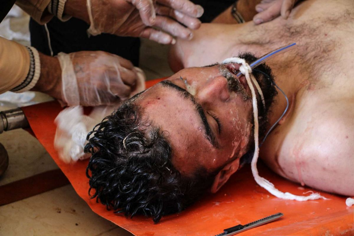 A Syrian man receives treatment after an alleged chemical attack at a field hospital in Saraqib.