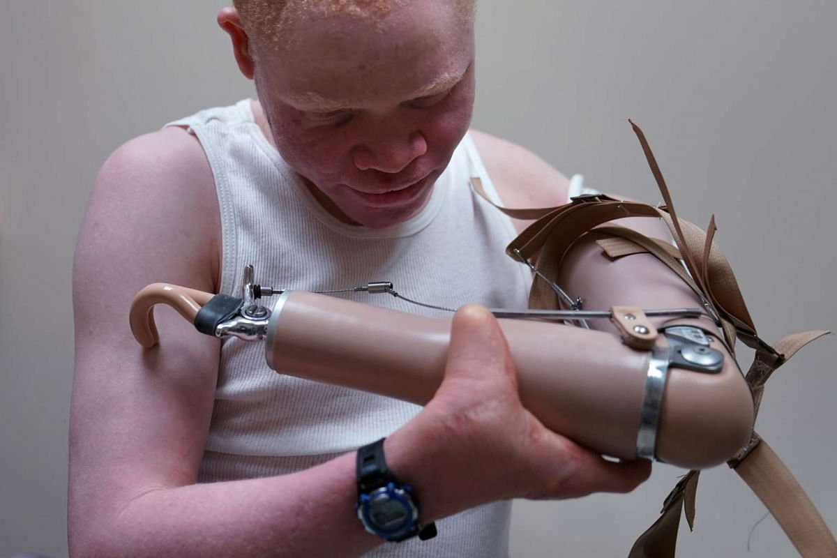 Emmanuel Rutema, a Tanzanian with Albinism who had his arm chopped off in a superstition-driven attack, tries to put on a new prosthetic arm at the Shriners Hospital in Philadelphia, Pennsylvania, U.S. May 30, 2017. PHOTO: REUTERS