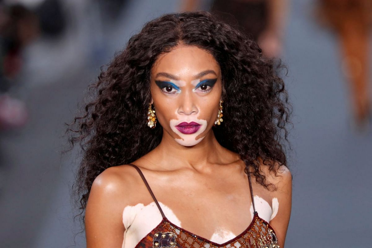 Model Winnie Harlow walks on a giant catwalk on the Champs Elysees Avenue during Paris Fashion Week in France, October 1, 2017. PHOTO: REUTERS