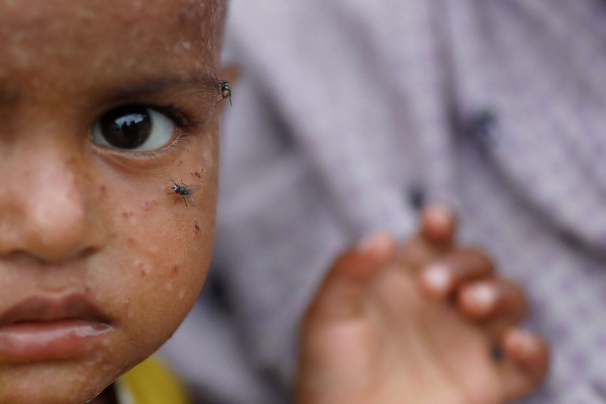 Flies sit on the face of a Rohingya refugee near Cox's Bazar, Bangladesh, Oct 9, 2017. PHOTO: REUTERS