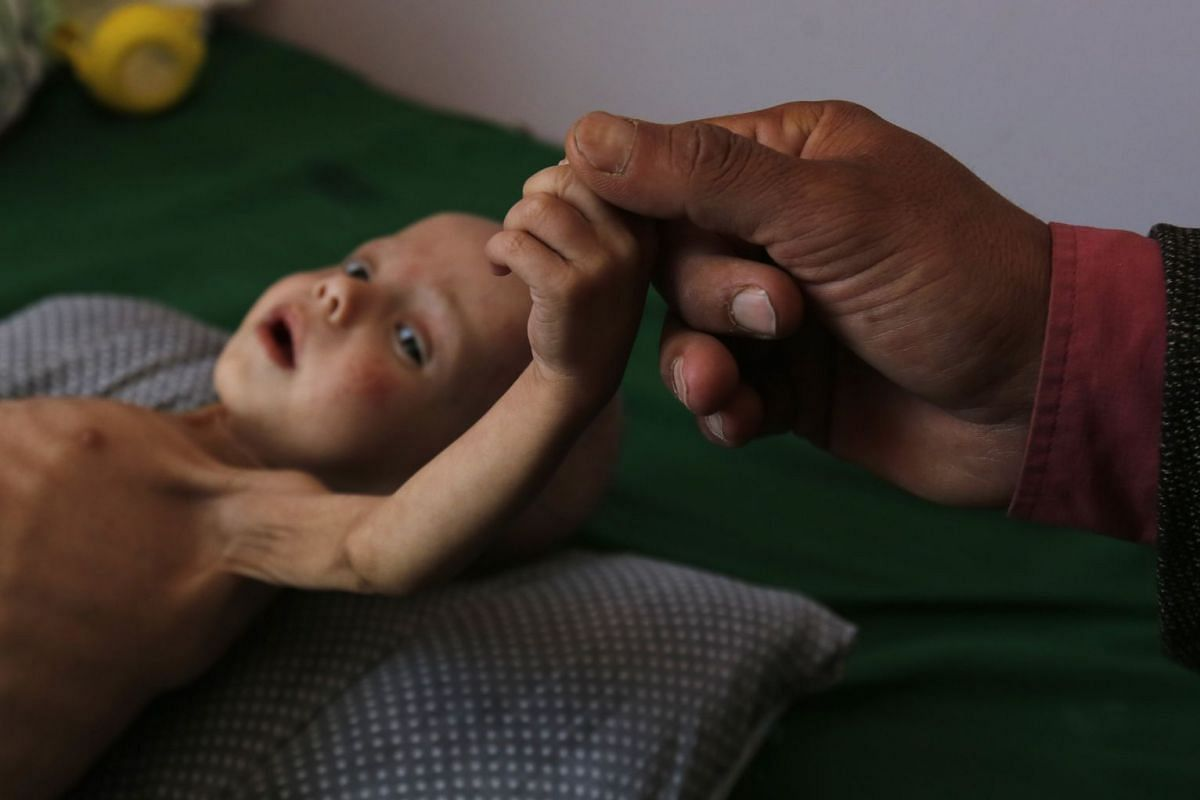 A malnourished Yemeni child receives treatment amid worsening malnutrition in the emergency ward of a hospital in Sana'a, Yemen, November 15, 2017. According to reports, more than 50,000 children under the age of 15 in Yemen are at risk of death from