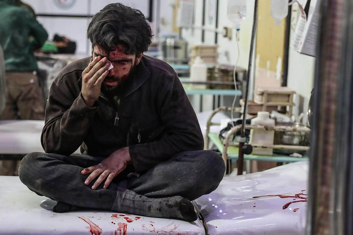 An injured man gets treatment at a hospital in rebel-held Douma, Ghouta, Syria, on Feb 19, 2018.