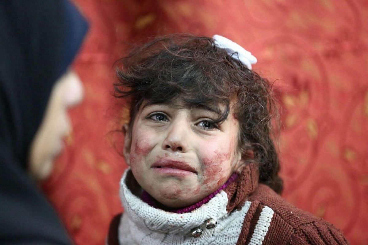 Hala, 9, receives treatment at a makeshift hospital following Syrian government bombardments on rebel-held town of Saqba, in the besieged Eastern Ghouta region on the outskirts of the capital Damascus, on Feb 22, 2018.