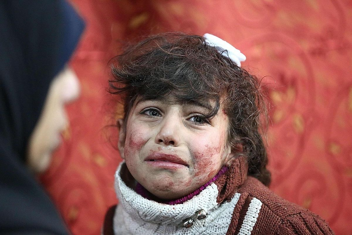 A boy being treated following a suspected gas attack on al-Shifunieh village. More than 18 people were affected and one child was killed. Nine-year-old Hala is among the civilians caught in the crossfire after a Syrian government air strike on the to