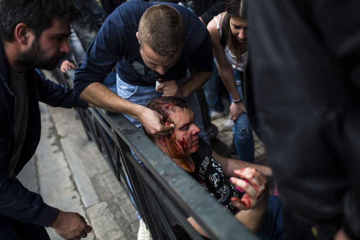 An injured protester receives first aid care by a fellow protester after Greek Communist Party supporters tried to bring down a statue of former US President Harry Truman during a demonstration in Athens on April 16, 2018 against United States, Brita