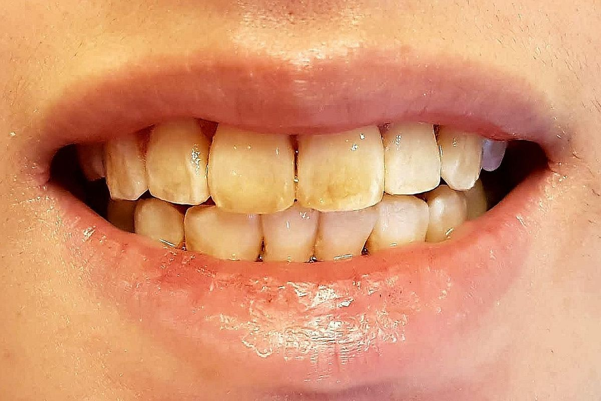 Stained teeth before and after an in-clinic whitening treatment. Lawyer Sheryl Lee, 29, had her teeth whitened for her wedding photo shoot, while marketing director Gary Gan, 41, also had his teeth treated as he believes whiter teeth help leave a bet