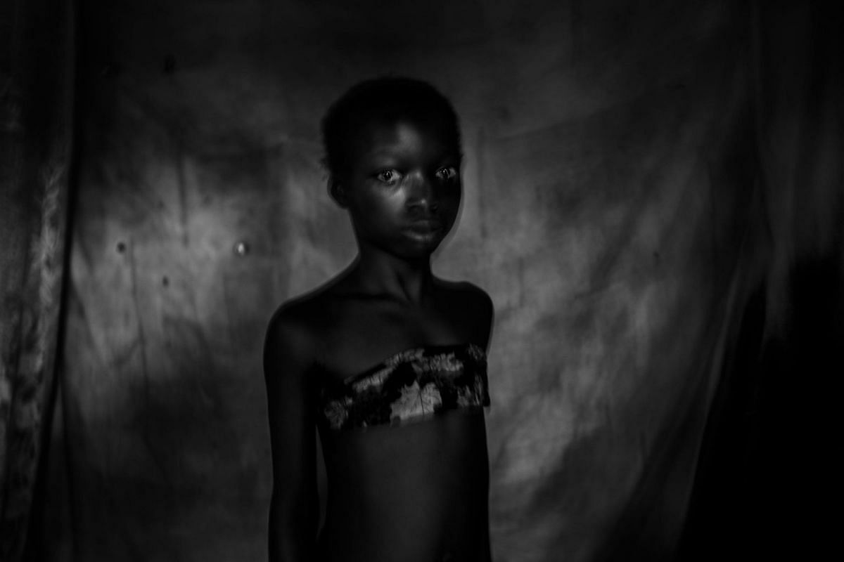 A photo taken on Nov 12, 2016 shows Suzanne, 11, from East Cameroon, who underwent breast ironing until her breasts were totally flattened.