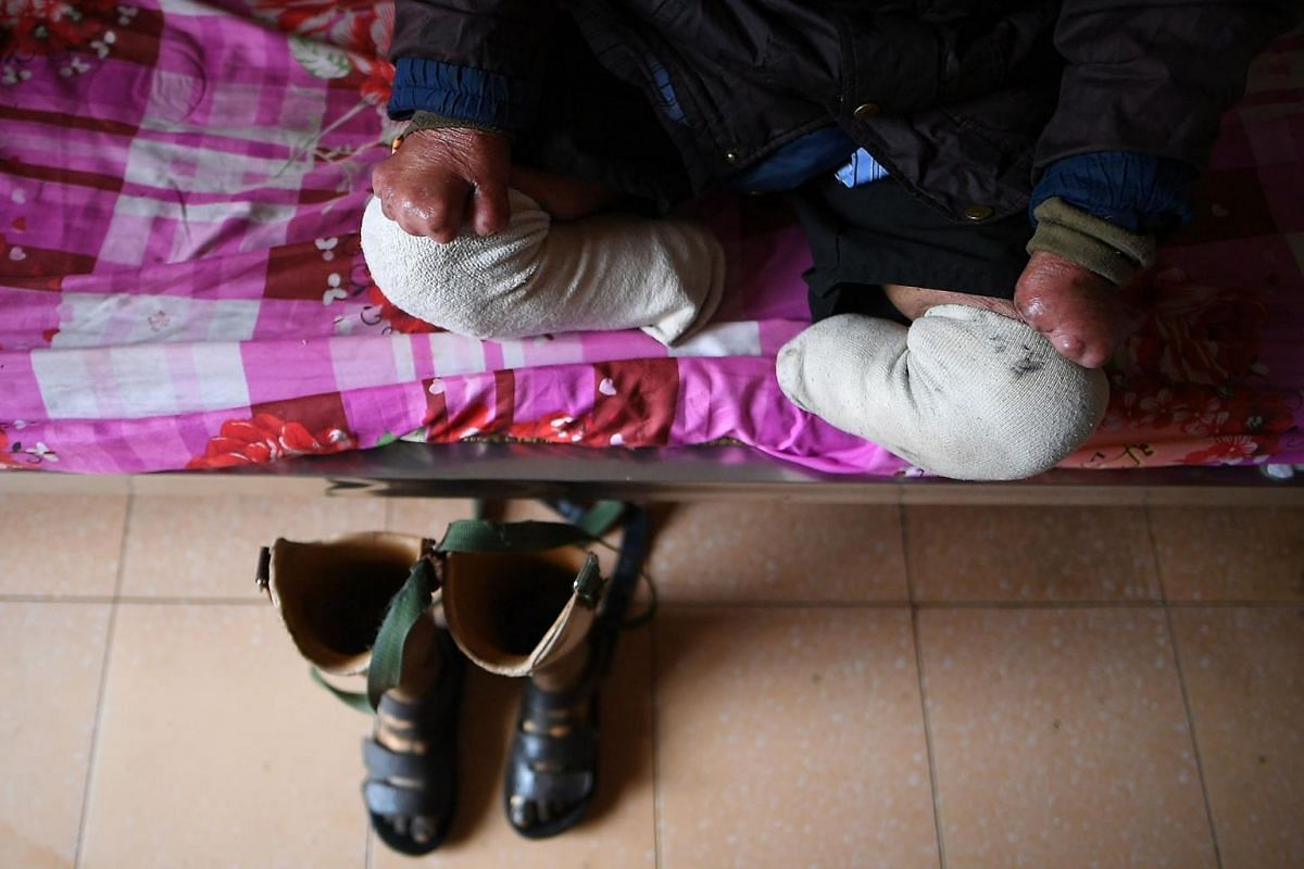 A disabled leprosy survivor sits on his bed at Van Mon Leprosy Hospice.