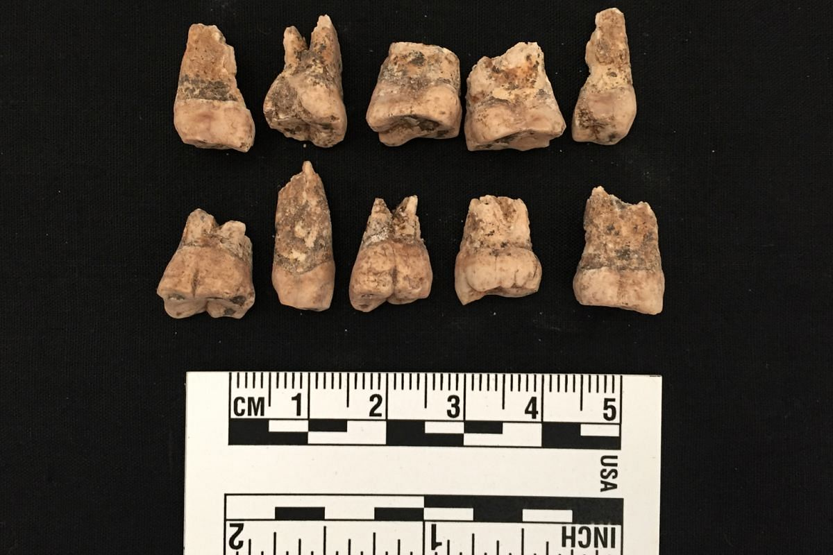 Human teeth found by Mr Lim and his team on the grounds of Victoria Concert Hall in 2011. The teeth were from early inhabitants of Singapore.
