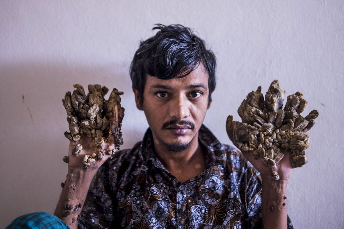"""Abul Bajandar, 28, dubbed """"Tree Man"""" for massive bark-like warts on his hands and feet, sits at Dhaka Medical College Hospital in Dhaka on June 24, 2019.  Frustrated by his worsening condition, a Bangladeshi father dubbed """"Tree Man"""" for the bark-"""