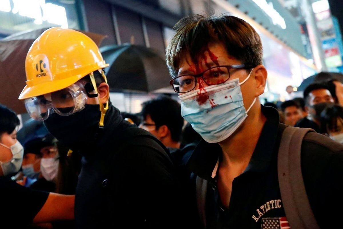 An anti-extradition bill protester is seen injured after a conflict with riot police at the end of a march at Hong Kong's tourism district Mong Kok, on July 7, 2019.