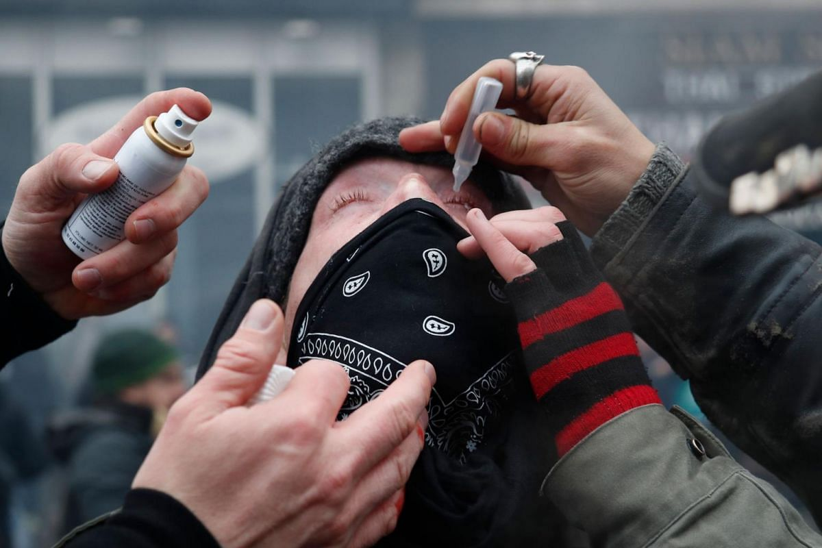 People put eye drops in a protester's eye during a demonstration against the pension overhauls in Paris, on Dec 5, 2019.