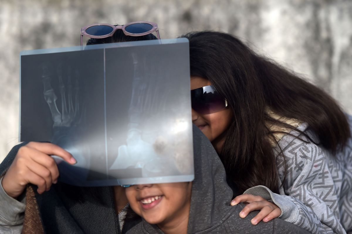 "People in Islamabad, Pakistan, watch a solar eclipse through a foot X-ray as the Moon covers the Sun in a rare ""ring of fire"" solar eclipse on Dec 26, 2019."