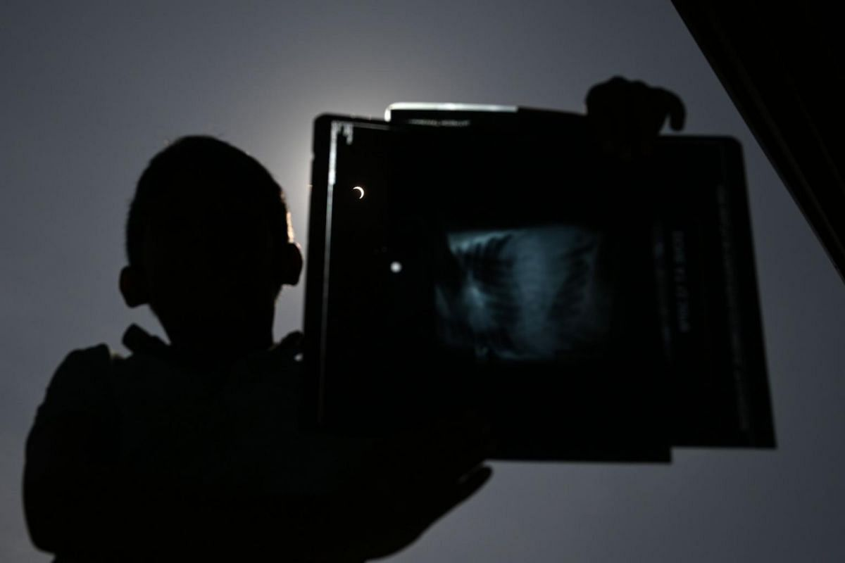 "A boy holds up an X-ray he was using to view a ""ring of fire"" solar eclipse in Colombo, on Dec 26, 2019."