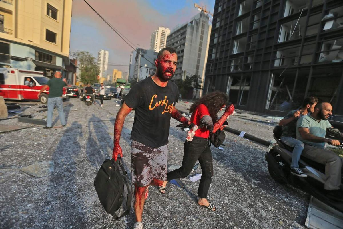 Wounded people walk near the site of an explosion at the port in Beirut on Aug 4, 2020.